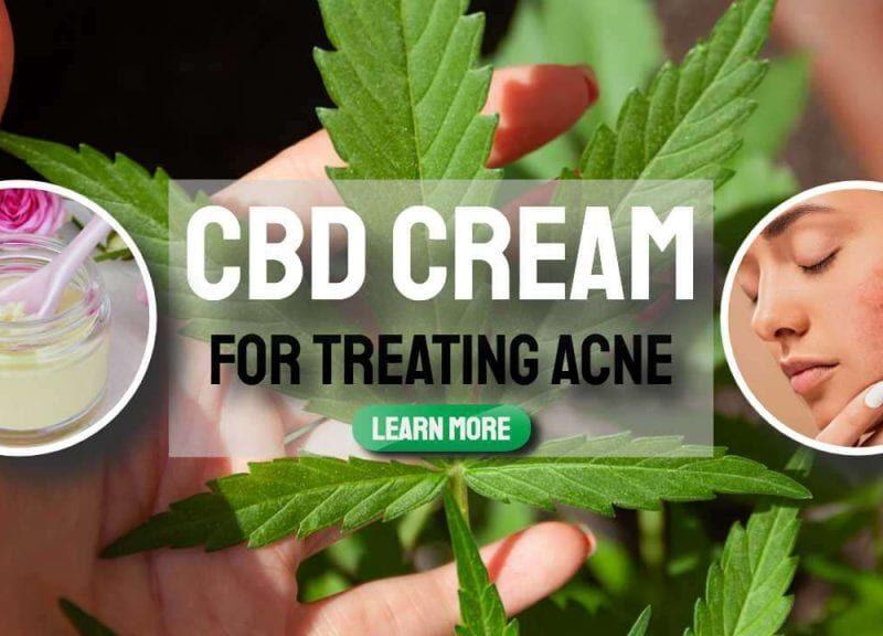 Can CBD Cream Cure Acne?